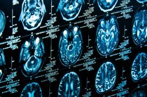 Cystéine et scanner