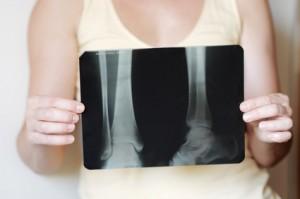 Ostéoporose : plantes médicinales et nutrition